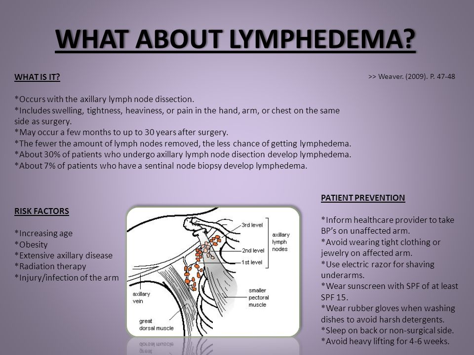 WHAT ABOUT LYMPHEDEMA WHAT IS IT