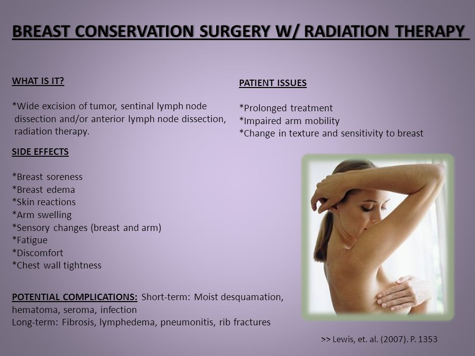 BREAST CONSERVATION SURGERY W/ RADIATION THERAPY