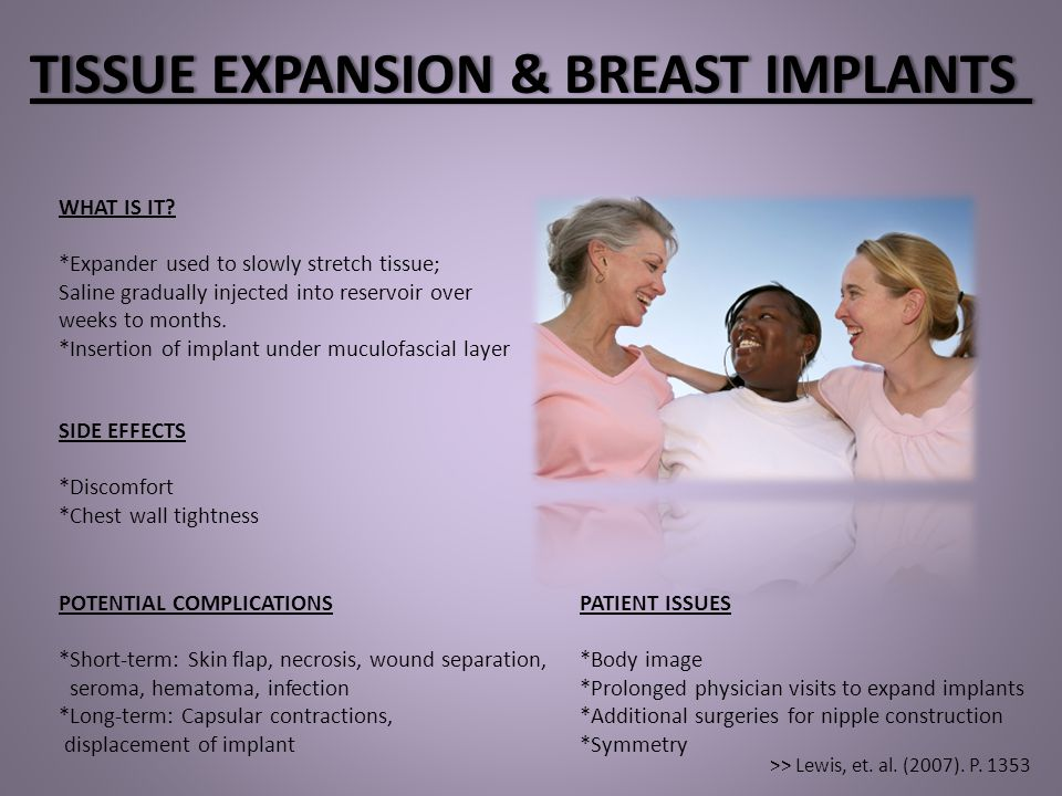 TISSUE EXPANSION & BREAST IMPLANTS