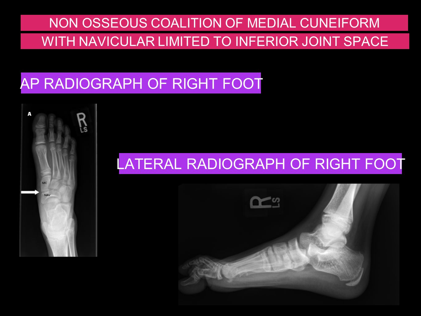 AP RADIOGRAPH OF RIGHT FOOT