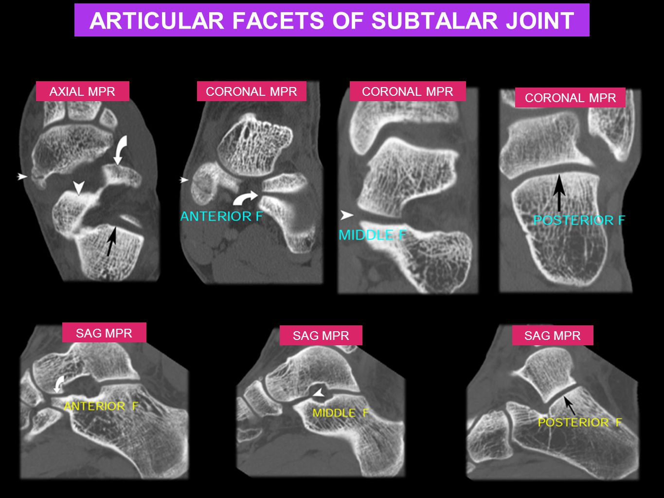 ARTICULAR FACETS OF SUBTALAR JOINT