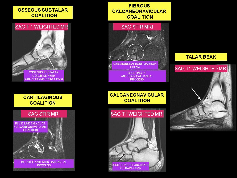 FIBROUS CALCANEONAVICULAR
