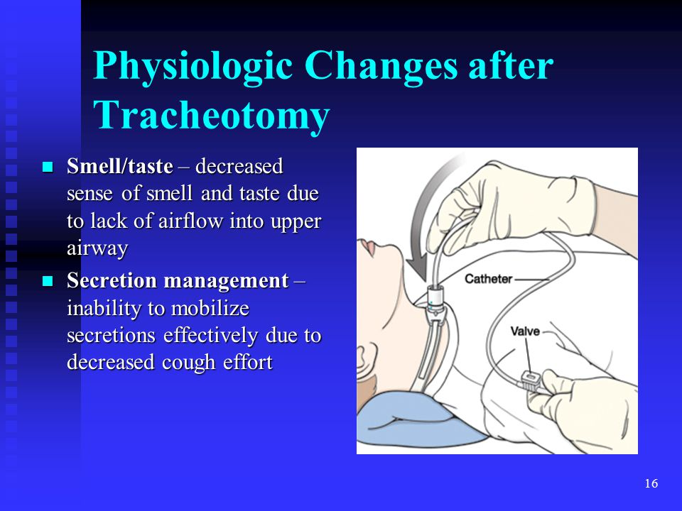Physiologic Changes after Tracheotomy