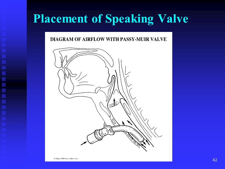 Placement of Speaking Valve