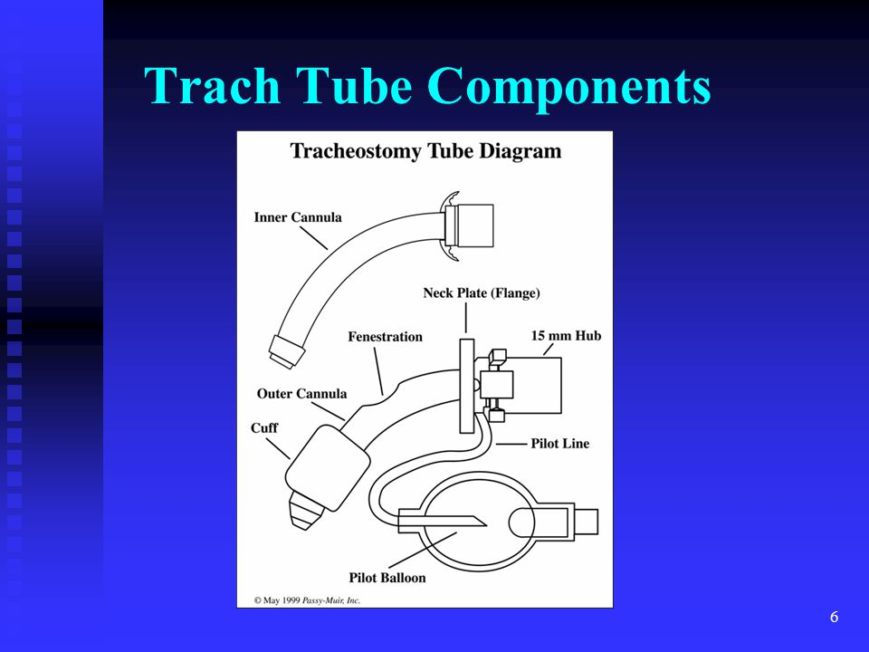 Trach Tube Components Demo with TOM