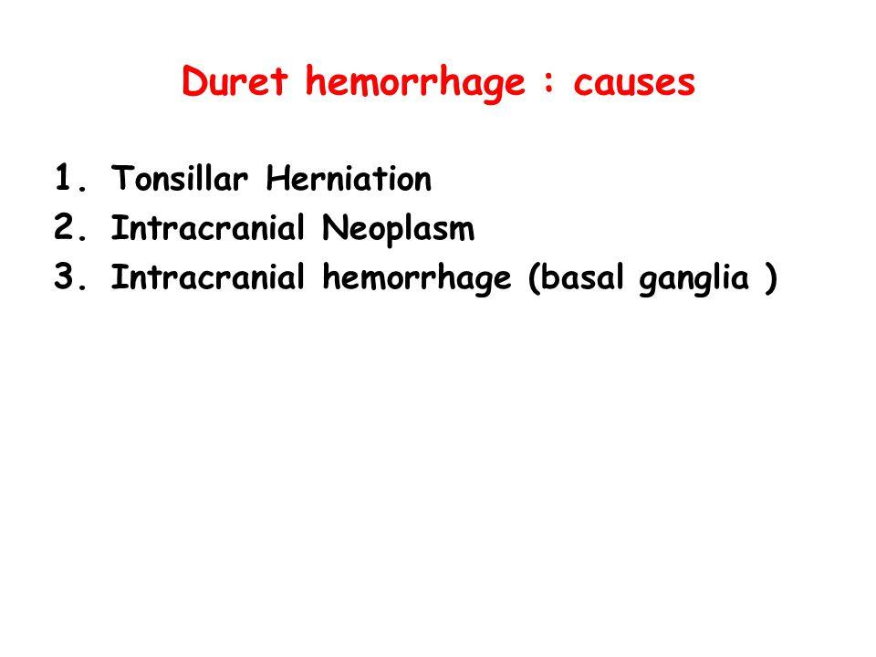 Duret hemorrhage : causes