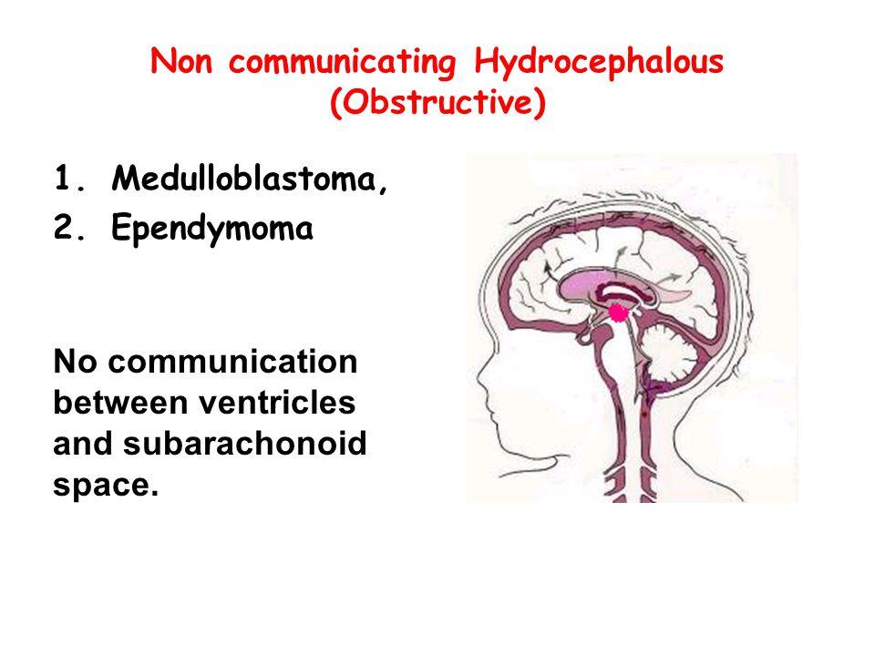Non communicating Hydrocephalous (Obstructive)