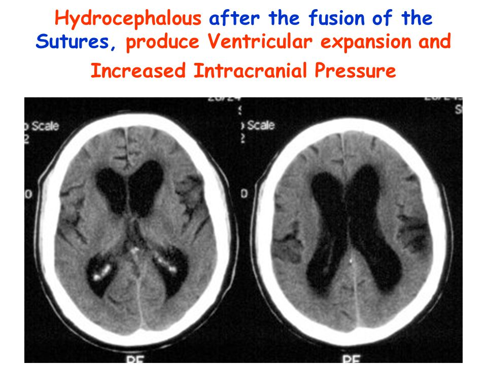 Hydrocephalous after the fusion of the Sutures, produce Ventricular expansion and Increased Intracranial Pressure