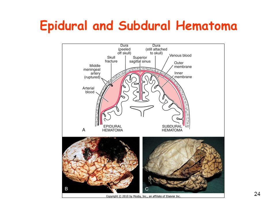 Epidural and Subdural Hematoma