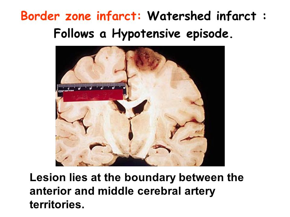 Border zone infarct: Watershed infarct : Follows a Hypotensive episode.