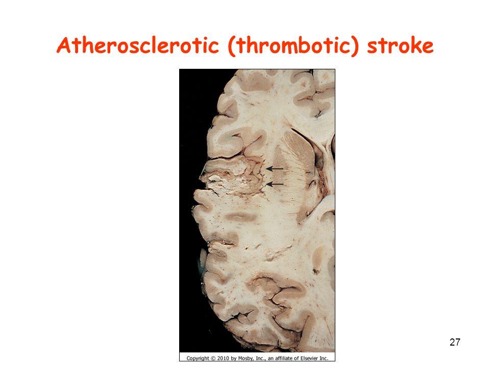 Atherosclerotic (thrombotic) stroke
