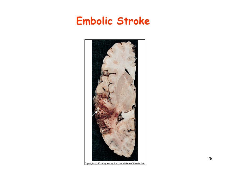 Embolic Stroke