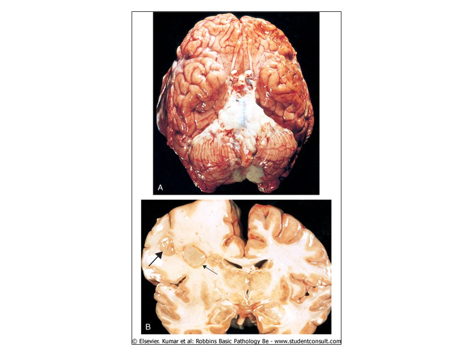 Bacterial infections. A, Pyogenic meningitis