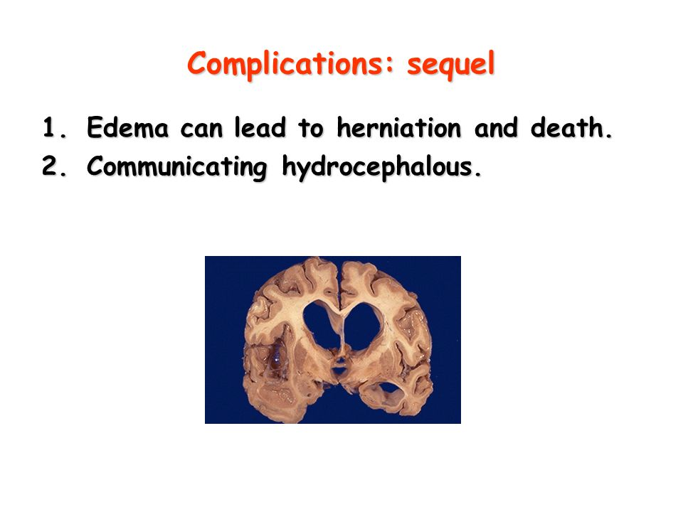 Complications: sequel