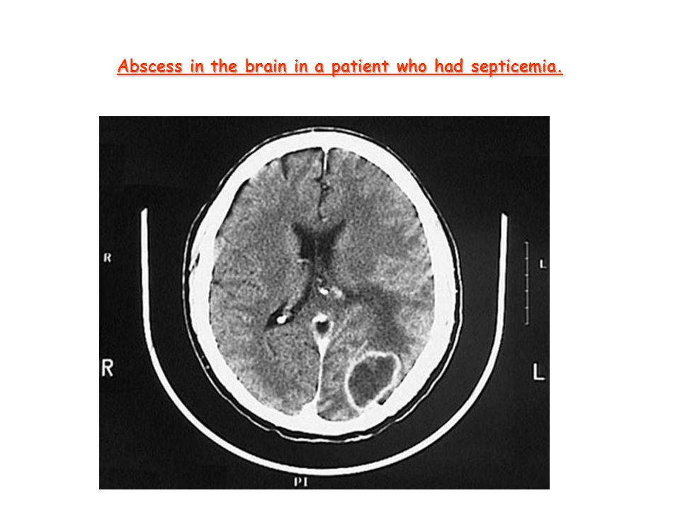 Abscess in the brain in a patient who had septicemia.
