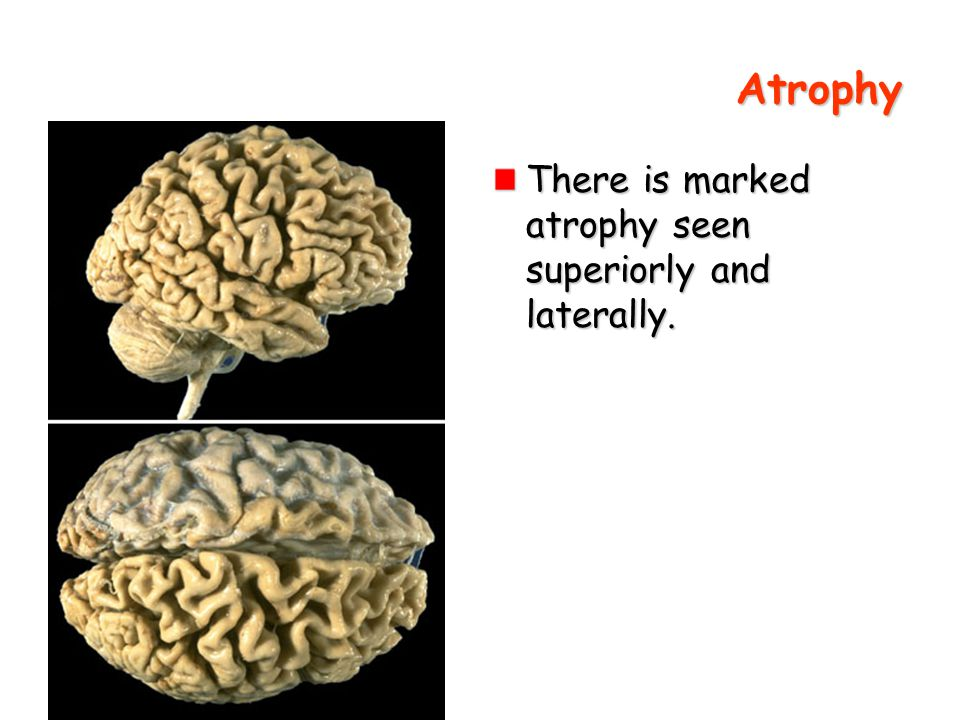 Atrophy There is marked atrophy seen superiorly and laterally.