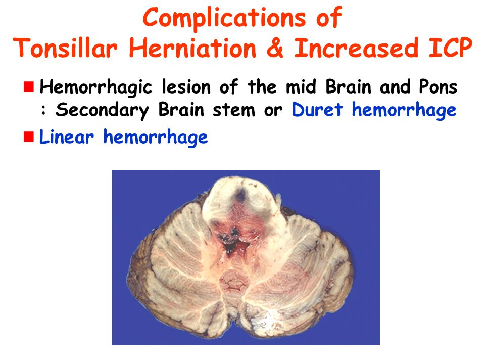 Complications of Tonsillar Herniation & Increased ICP