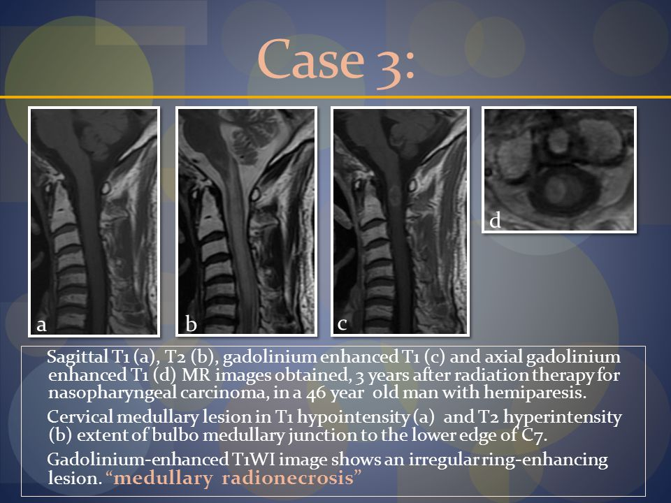 Case 3: a. b. c. d.