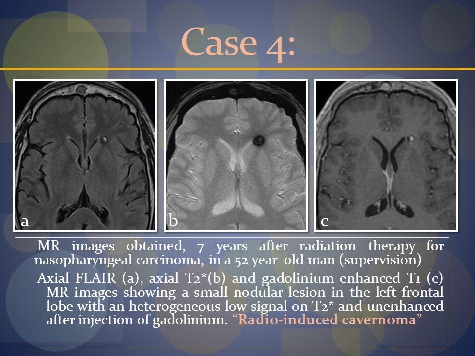 Case 4: a. b. c.