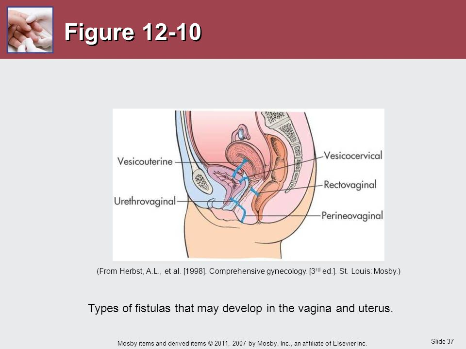 Types of fistulas that may develop in the vagina and uterus.