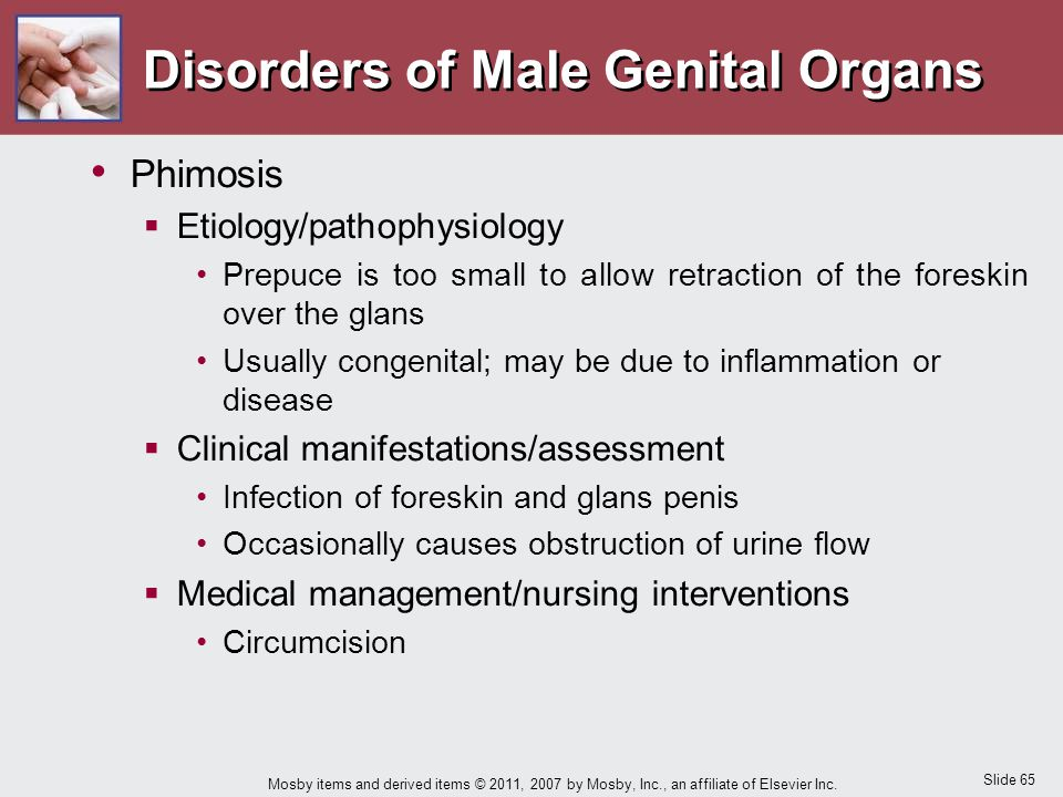 Disorders of Male Genital Organs