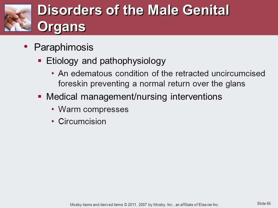 Disorders of the Male Genital Organs