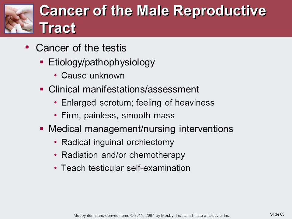 Cancer of the Male Reproductive Tract