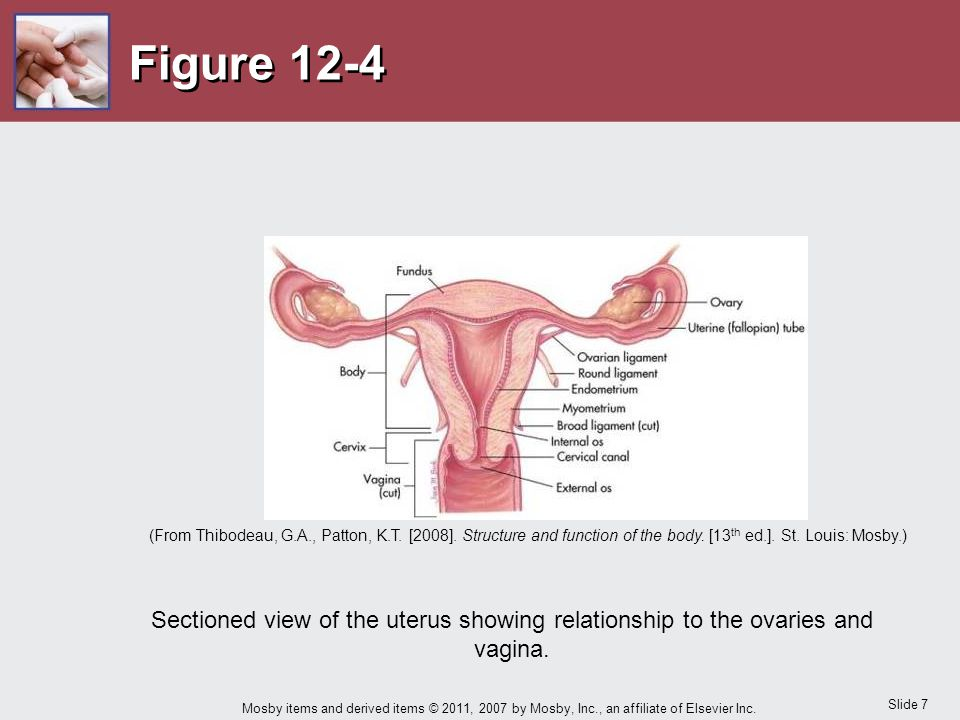 Figure 12-4 The sectioned view of the uterus illustrates the relationship between the uterus, ovaries and vagina.