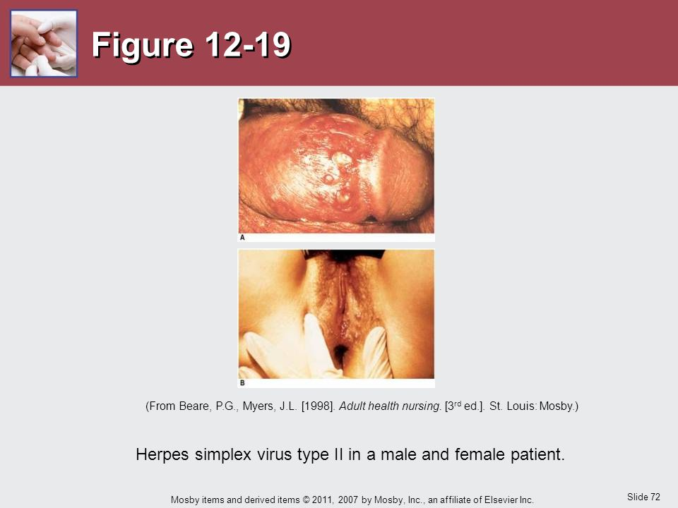 Herpes simplex virus type II in a male and female patient.