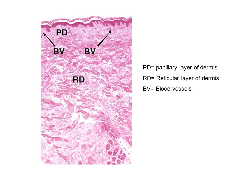 PD= papillary layer of dermis