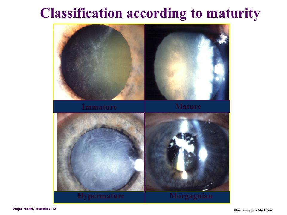 Classification according to maturity