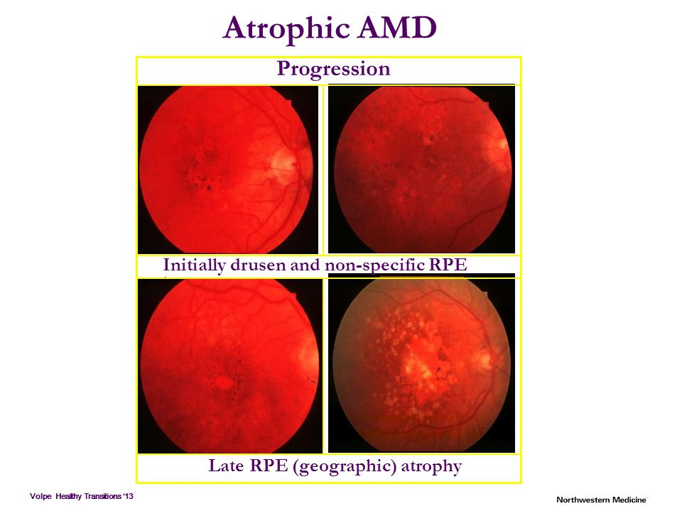 Atrophic AMD Progression Initially drusen and non-specific RPE changes