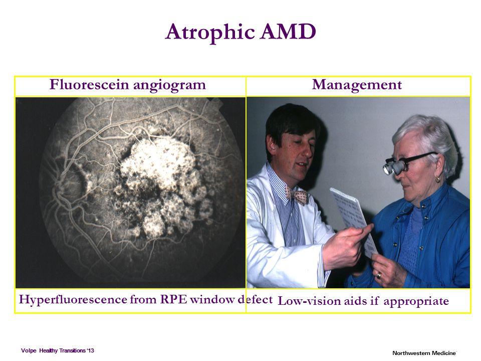 Atrophic AMD Fluorescein angiogram Management