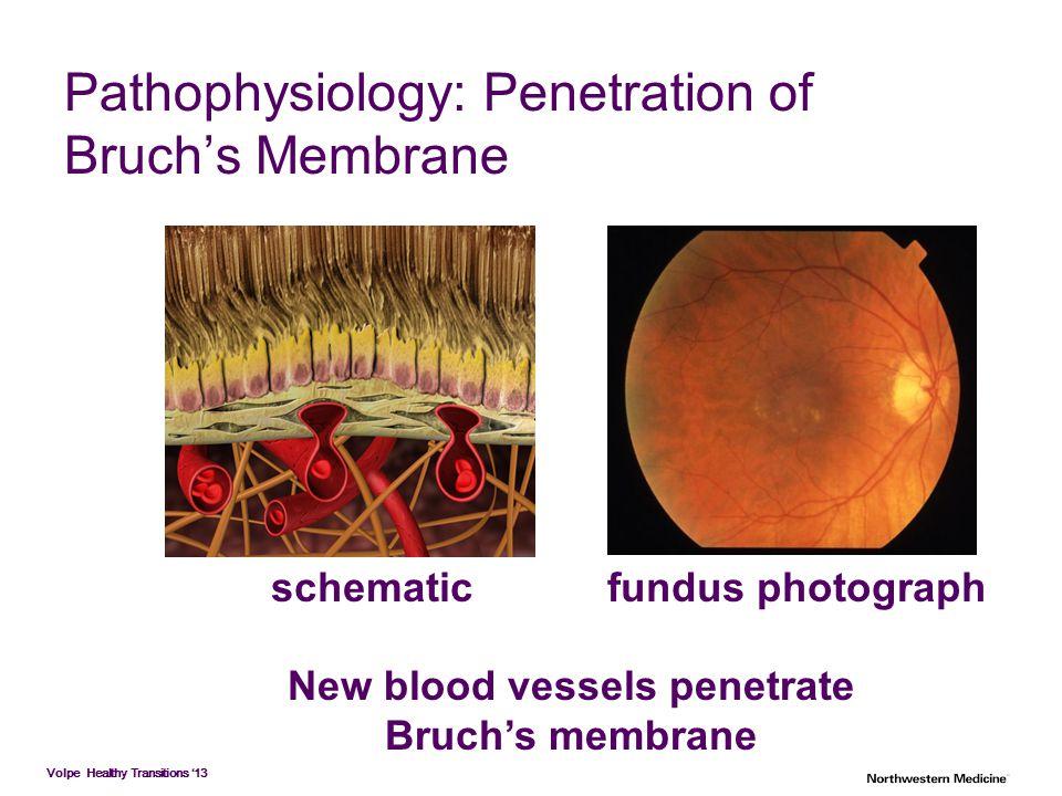 Pathophysiology: Penetration of Bruch's Membrane