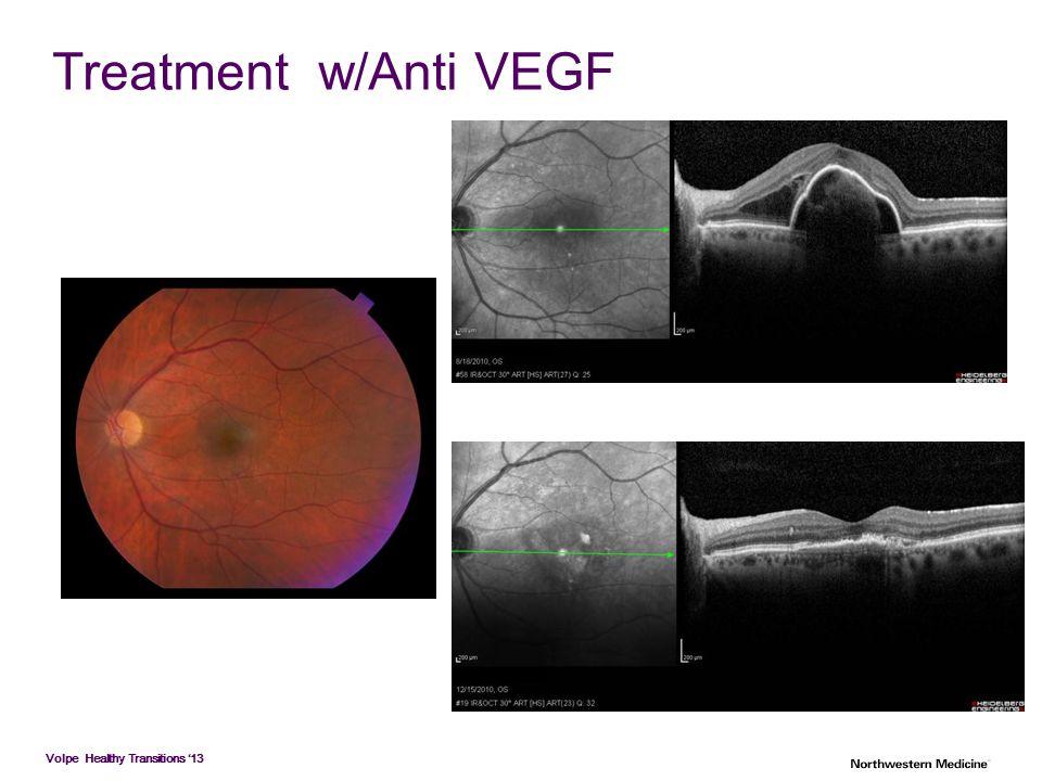 Treatment w/Anti VEGF
