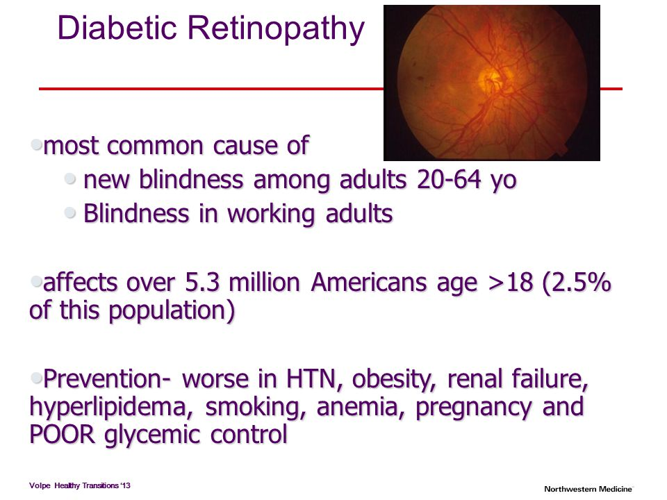 Diabetic Retinopathy most common cause of