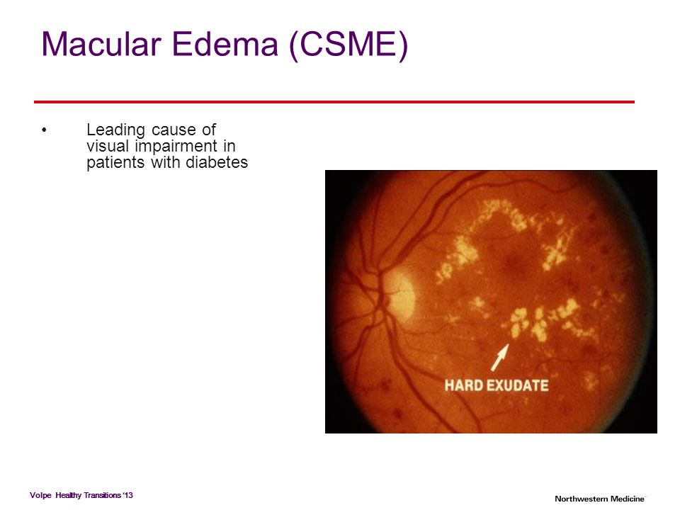Macular Edema (CSME) Leading cause of visual impairment in patients with diabetes