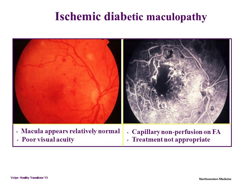 Ischemic diabetic maculopathy