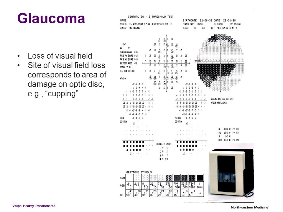 Glaucoma Loss of visual field Site of visual field loss