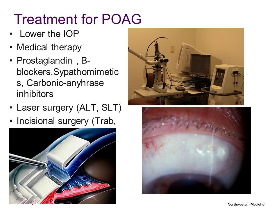 Treatment for POAG Lower the IOP Medical therapy