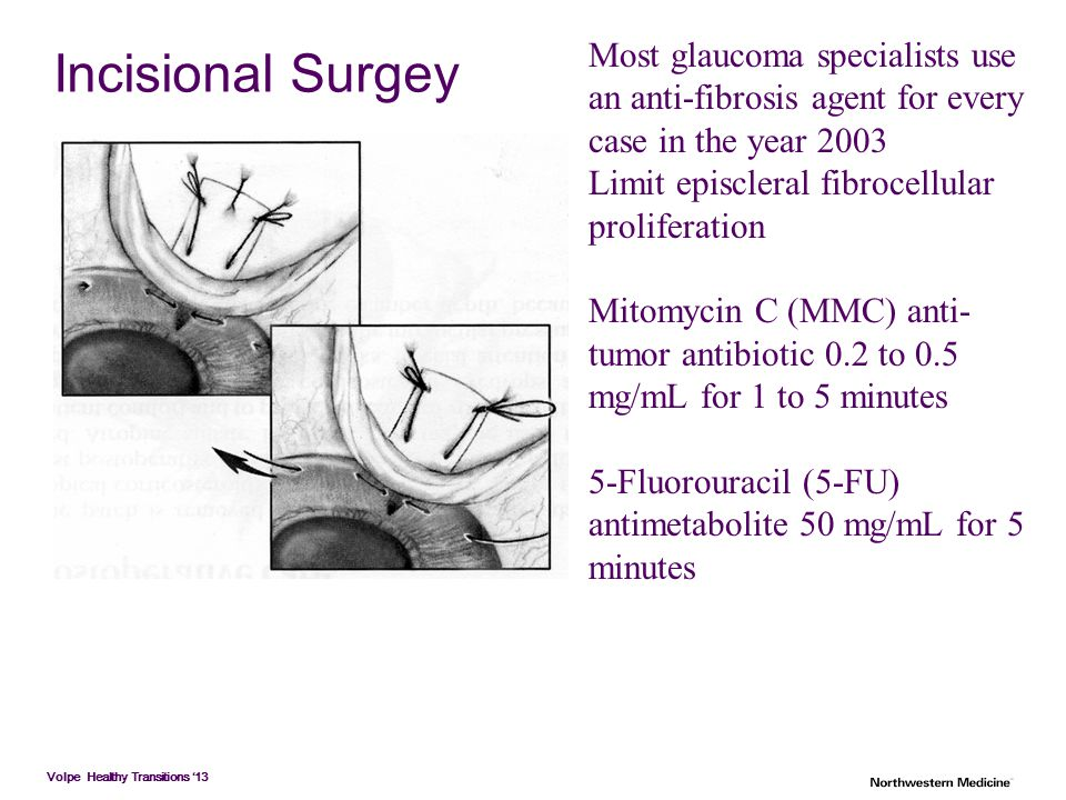 Most glaucoma specialists use an anti-fibrosis agent for every case in the year 2003
