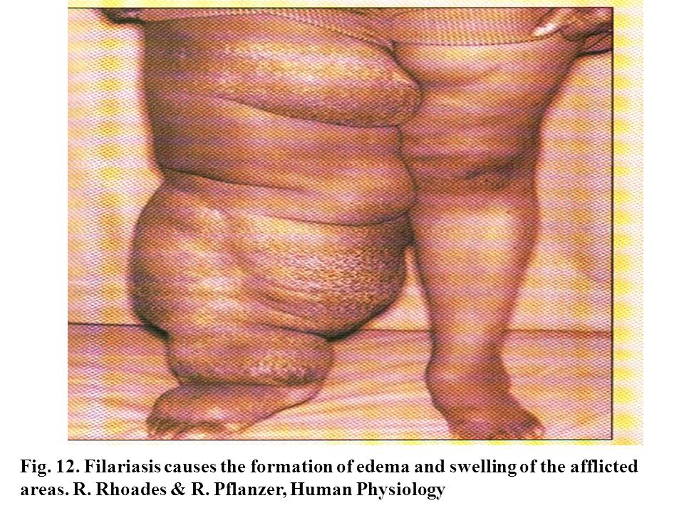 Fig. 12. Filariasis causes the formation of edema and swelling of the afflicted areas.