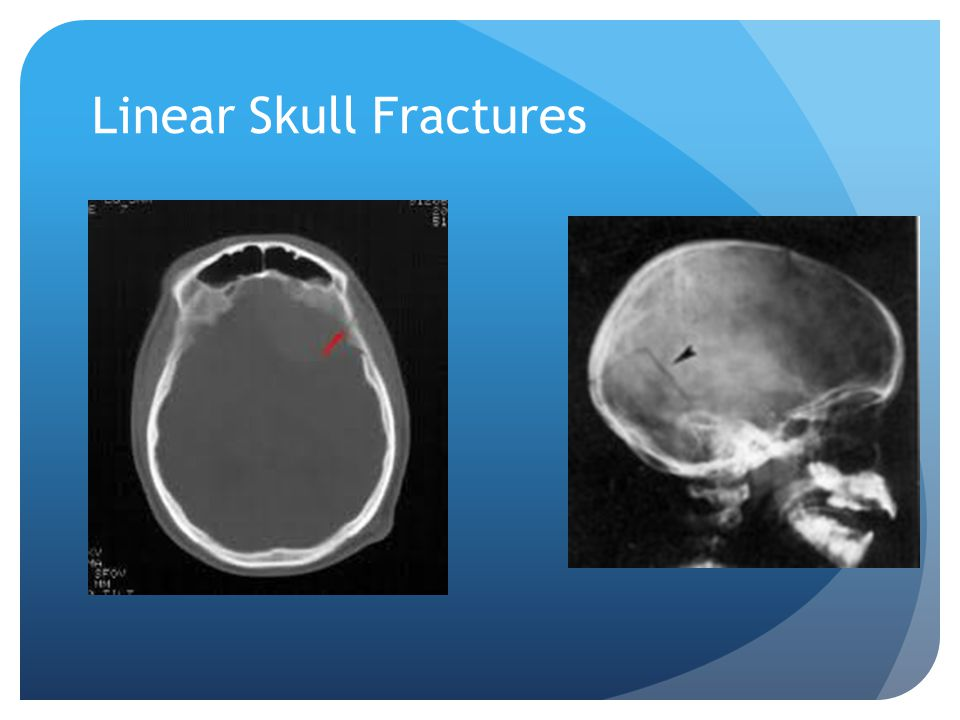 Linear Skull Fracture : Cases in pediatric acute care ppt download