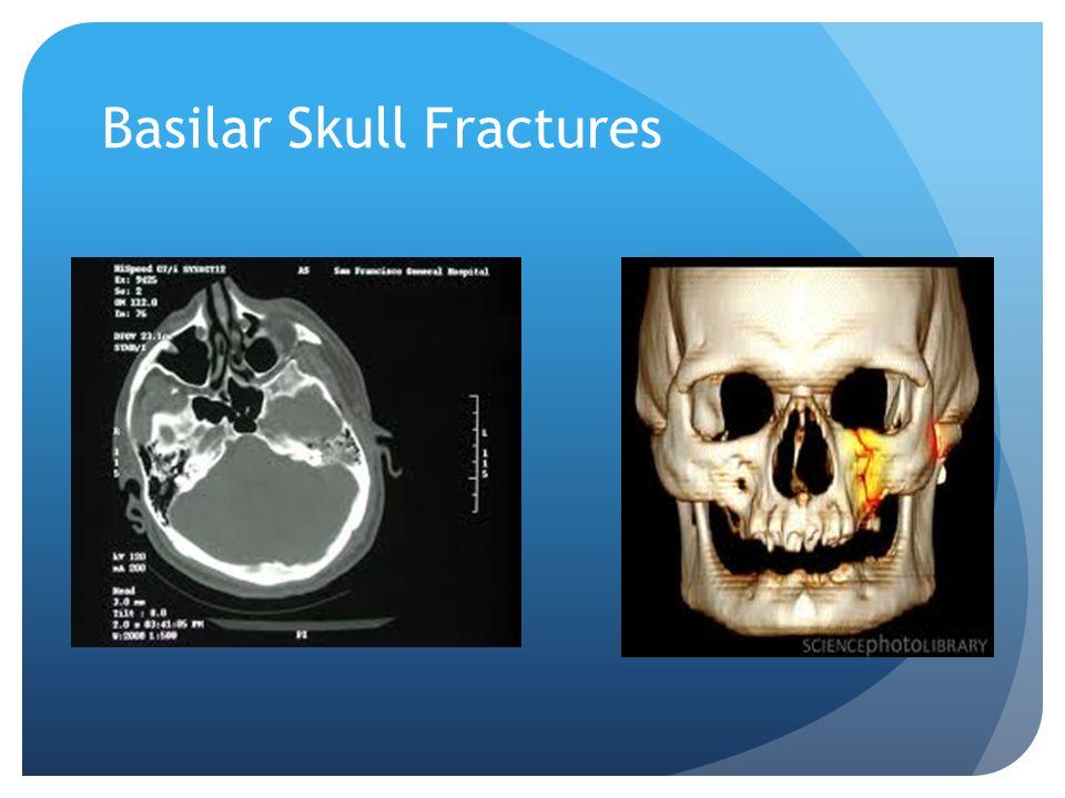 Basilar Skull Fractures