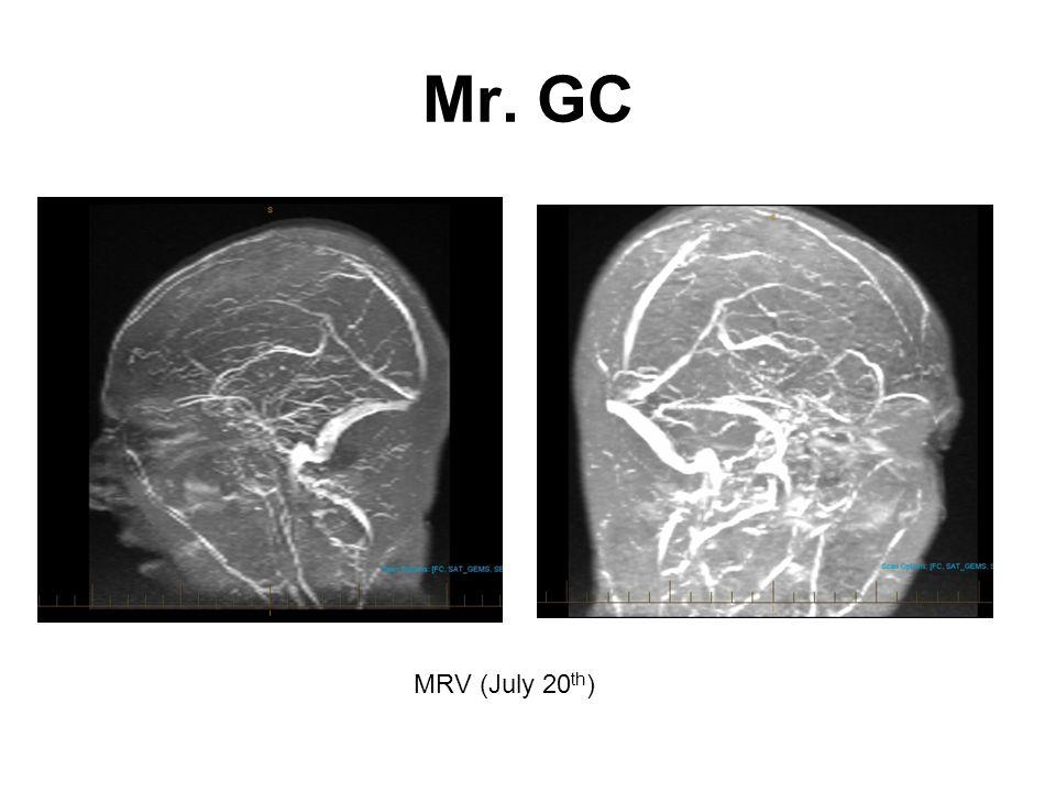 Mr. GC MRV (July 20th)