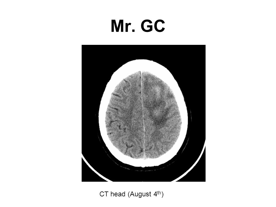 Mr. GC CT head (August 4th)