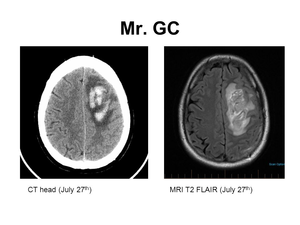 Mr. GC CT head (July 27th) MRI T2 FLAIR (July 27th)