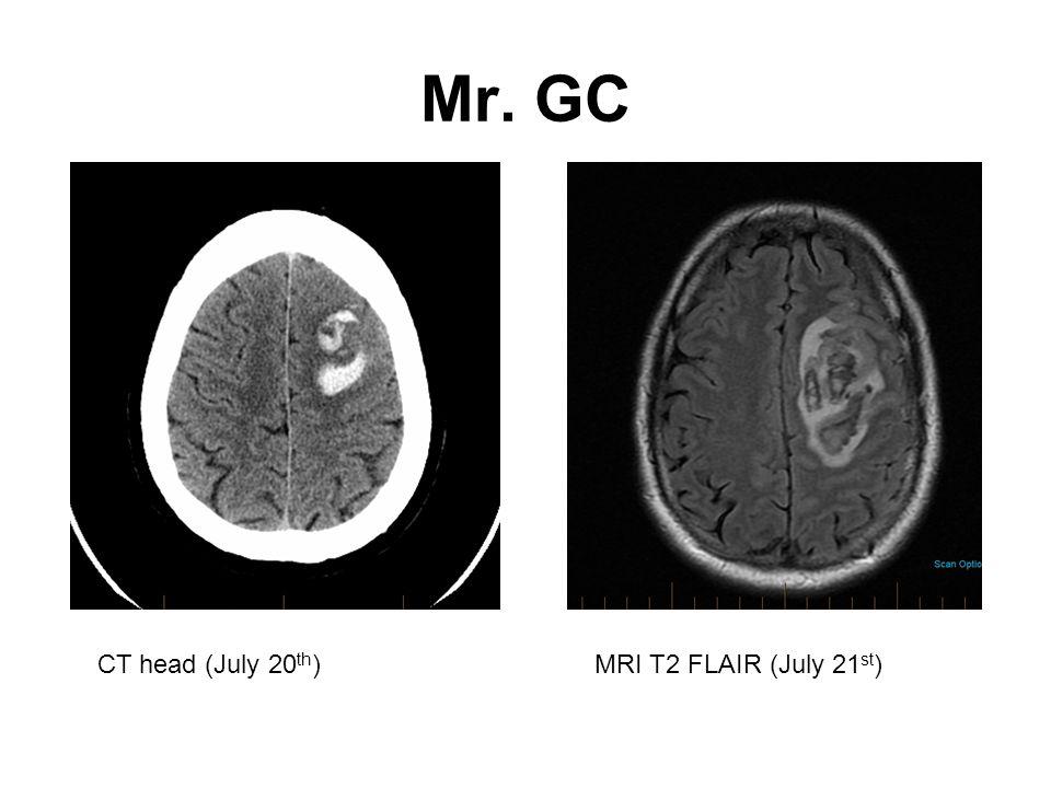 Mr. GC CT head (July 20th) MRI T2 FLAIR (July 21st)