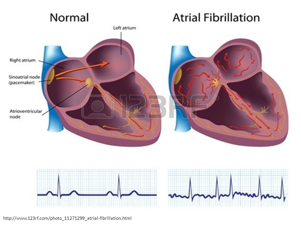 http://www.123rf.com/photo_11271299_atrial-fibrillation.html