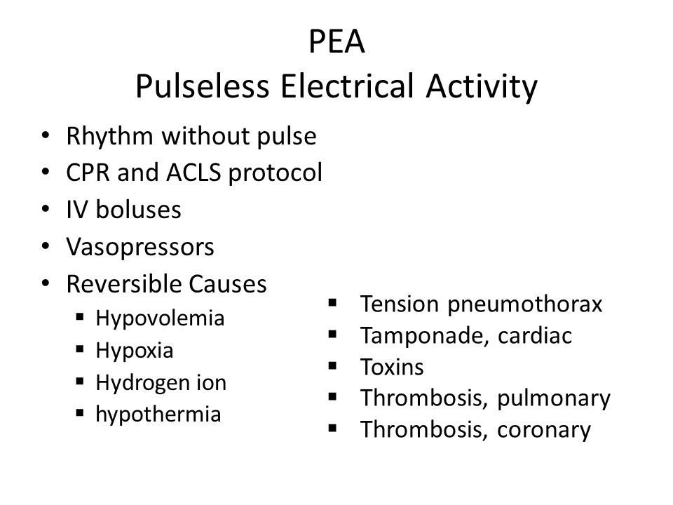 PEA Pulseless Electrical Activity